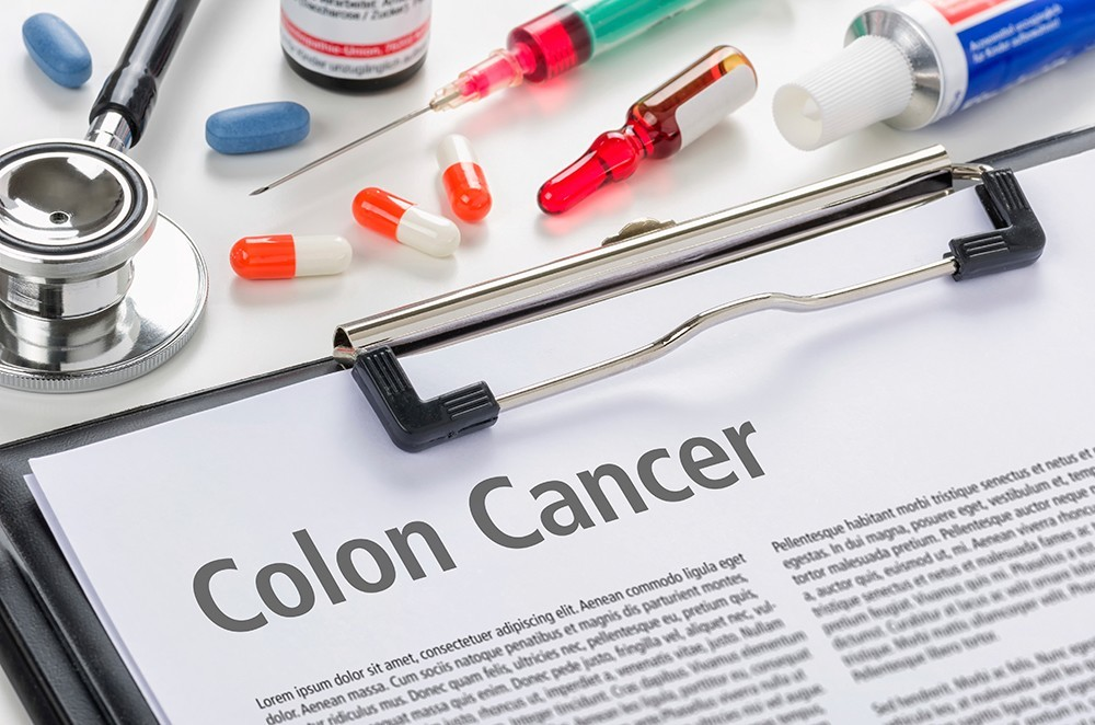 Diagnosis Colon Cancer